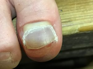 This Is A Clic Blister That Occurs Just Behind The Toenail You Can See Hasn T Been Filed Smooth Catching On Inside Of Shoe