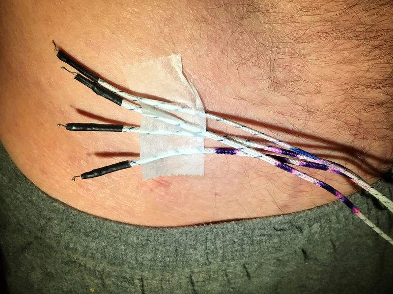 File:Skin Temperature Probes.jpg